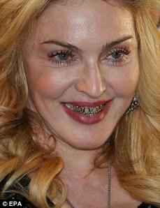 madonna diente
